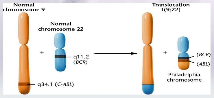 Bcr Abl Gene Translocation T922